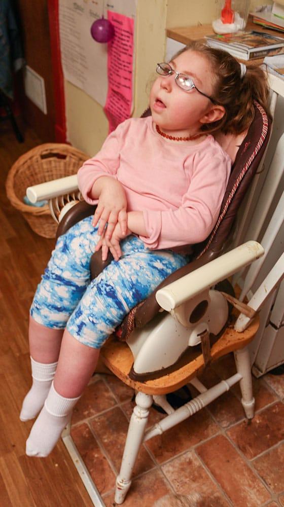 birth injury girl 4 560x1000 1