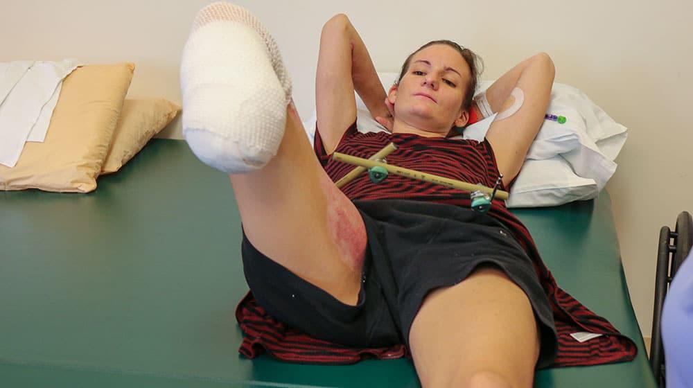 leg amputee woman 2 1000x560 1
