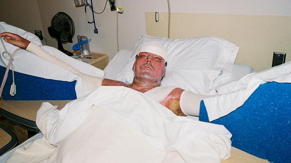 man severely burned in grain explosion